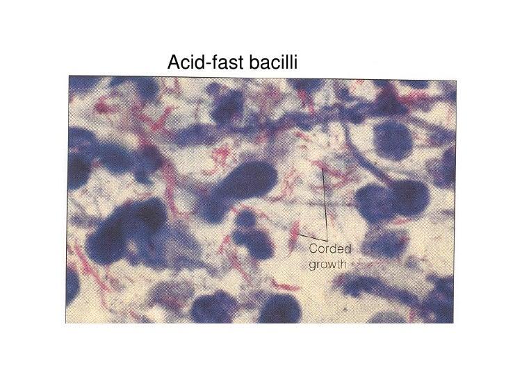 Acid-fast bacilli