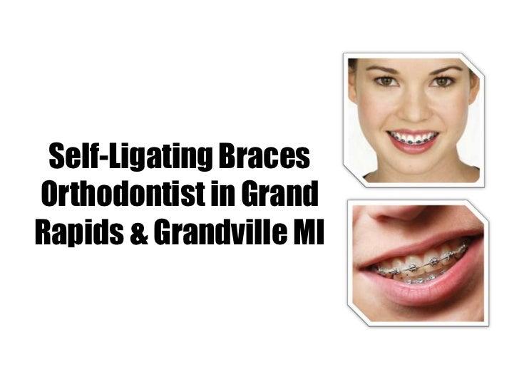 Self-Ligating BracesOrthodontist in GrandRapids & Grandville MI