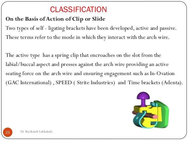Recent advances inSelf ligating brackets