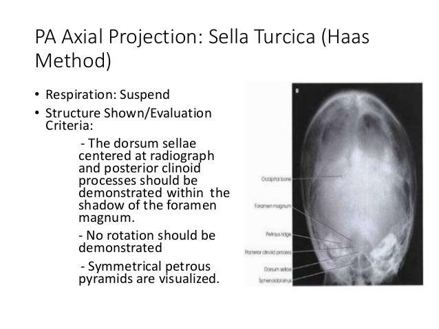 Sella Turcica (RAD32)