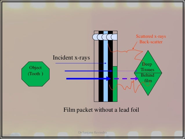 X ray films by dr sanjana ravindra sanjana ravindra 57 deep tissues behind film incident x rays ccuart Image collections