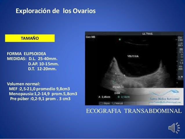 Semana 11.clase 2 anatomia por imagenes utero ,anexos ecografia 1er t…