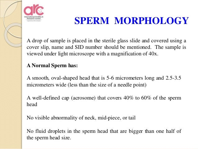 Sperm test vitality with