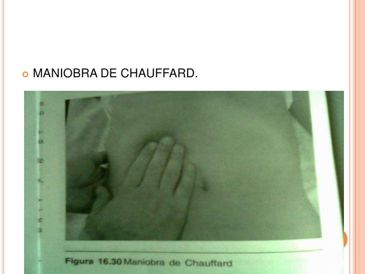    MANIOBRA DE CHAUFFARD.