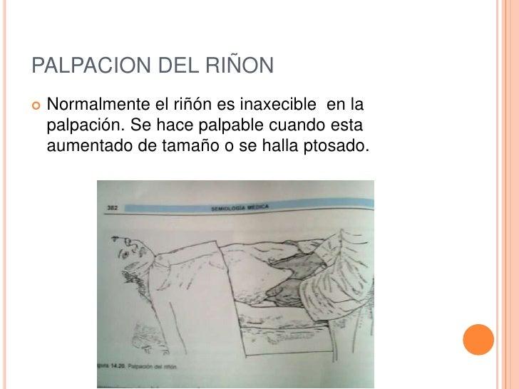 PALPACION DEL RIÑON   Normalmente el riñón es inaxecible en la    palpación. Se hace palpable cuando esta    aumentado de...