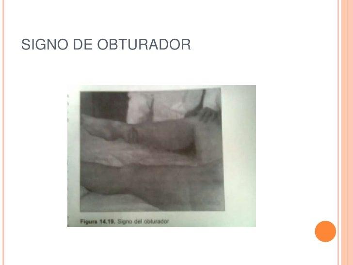 SIGNO DE OBTURADOR