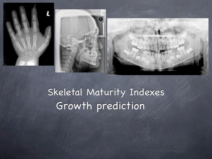 Skeletal Maturity Indexes Growth prediction