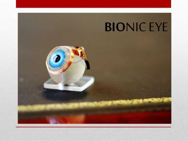 the history of the bionic eye We are currently developing three bionic eye devices: a prototype with 44 electrodes, a wide-view device with 98 electrodes, and a high-acuity device with 256 electrodes in 2014 we completed tests with an early prototype device with three people these tests helped researchers learn more about how the brain interprets.