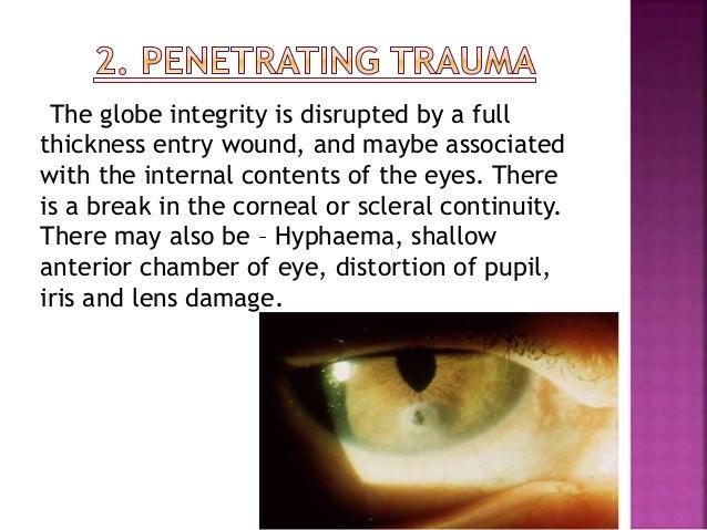 Examination of eyes