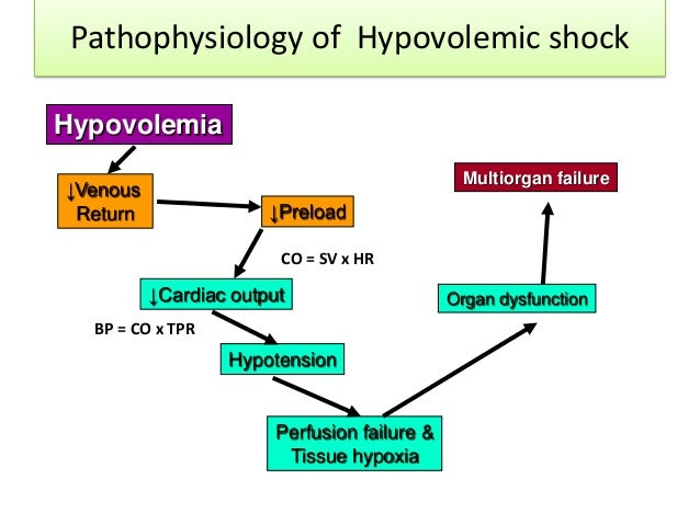 shock : hypovolemic, septic and neurogenic, Skeleton