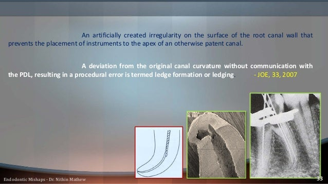 • Root canal instrument can no longer be inserted into the canal to full working length. • Loss of tactile sensation of th...