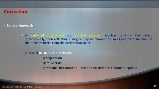 • Less adverse effect than coronal perforations. Prognosis 58Endodontic Mishaps - Dr. Nithin Mathew
