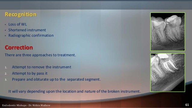 Factors influencing broken instrument removal • C.S diameter of the canal • Length of the canal • Curvature of the canal •...