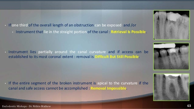 Type of the material • SS files : • Tend to be easier for removal because they do not further fracture during the removal ...