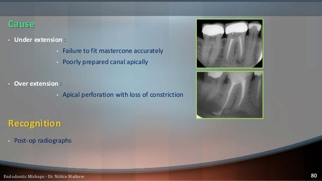 • Under extension : • Retreatment • Over extension : • More difficult • Successful if the entire GP is removed in one tug ...