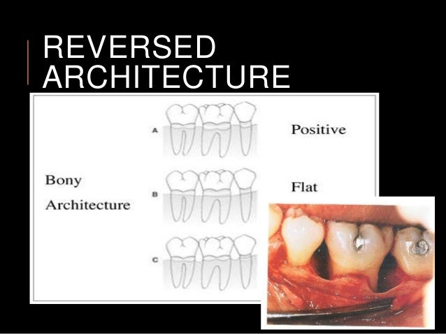 Periodontal bone defects