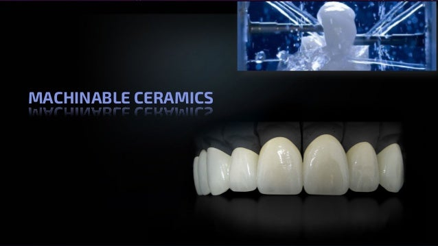 All Ceramics – Dr. Nithin Mathew MACHINABLE CERAMICS