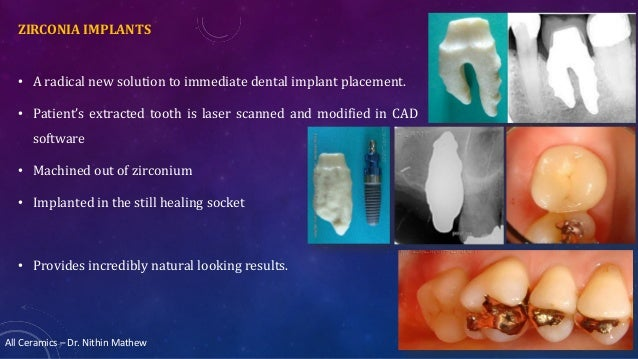 All Ceramics – Dr. Nithin Mathew ZIRCONIA IMPLANTS • A radical new solution to immediate dental implant placement. • Patie...