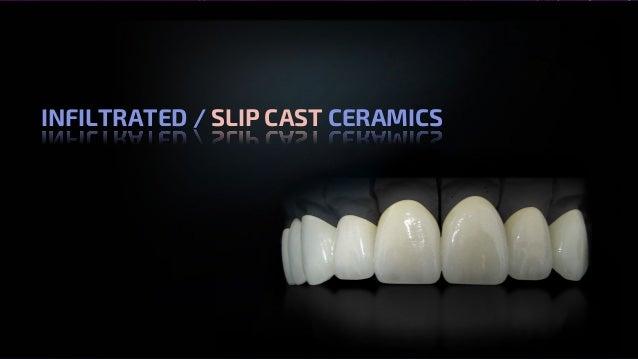 All Ceramics – Dr. Nithin Mathew INFILTRATED / SLIP CAST CERAMICS