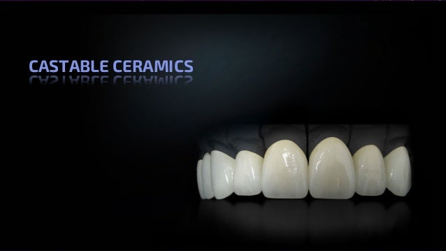 All Ceramics – Dr. Nithin Mathew 79 CASTABLE CERAMICS