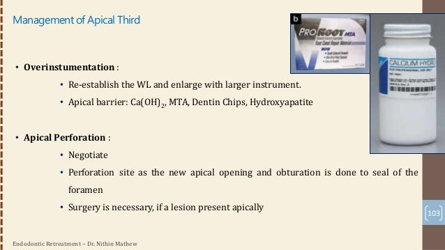 Endodontic Retreatment – Dr. Nithin Mathew • Surgical Approach: • A combined intracoronal and surgical approach involves r...