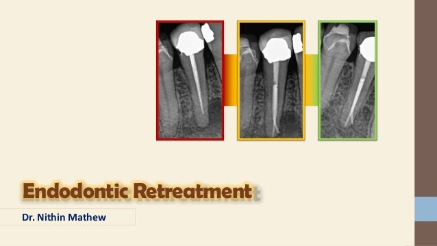 Endodontic Retreatment – Dr. Nithin Mathew Contents • Introduction • Definition • Etiology • Evaluation • Indications & Co...