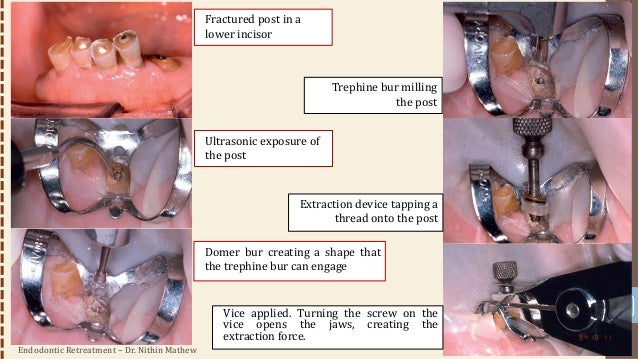 Endodontic Retreatment – Dr. Nithin Mathew 47 • Drawbacks: • Size of the vice that can make access in the molar region and...