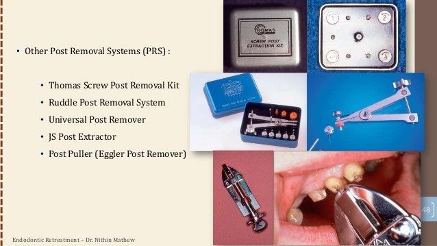 Endodontic Retreatment – Dr. Nithin Mathew 49 Removal Of Fibre Posts • Ultrasonic / gonon kit : none works for fibre post ...
