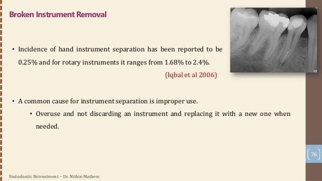 Endodontic Retreatment – Dr. Nithin Mathew 77 List of guidelines for when to discard and replace instruments : 1. Flaws, s...