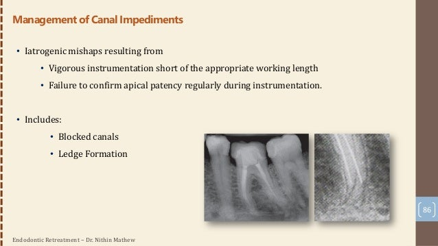 Endodontic Retreatment – Dr. Nithin Mathew 87 Managing Blocked canals • Well-angulated radiographs • Coronal portion of th...