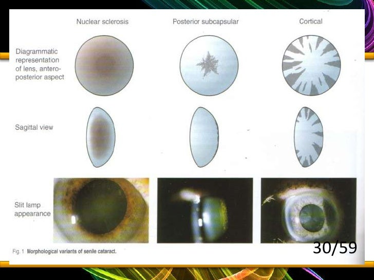 Seminar 1 ophthal refractive error and cataract