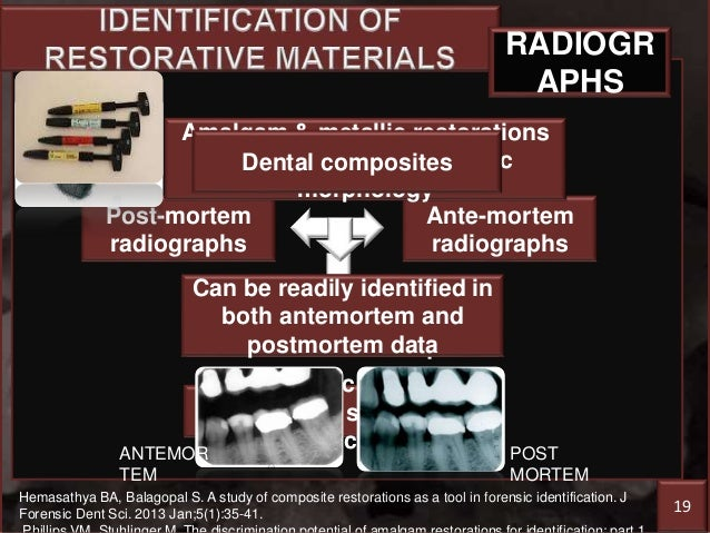 Restorative dentistry forensic sciences 23 fandeluxe Images