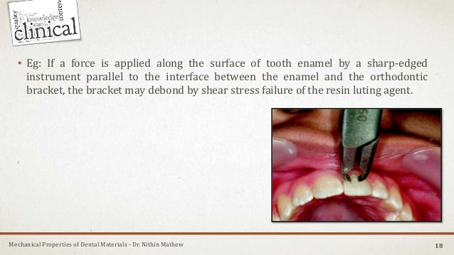 Mechanical Properties of Dental Materials - Dr. Nithin Mathew 18 • Eg: If a force is applied along the surface of tooth en...