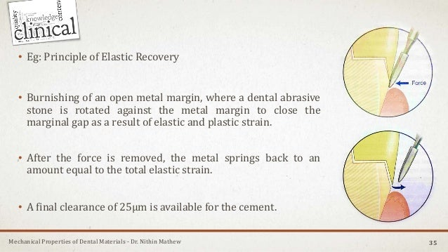 Mechanical Properties of Dental Materials - Dr. Nithin Mathew • Eg: Principle of Elastic Recovery • Burnishing of an open ...
