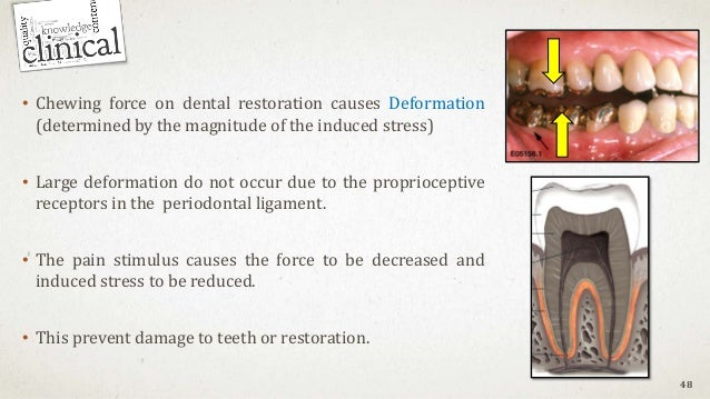 • Chewing force on dental restoration causes Deformation (determined by the magnitude of the induced stress) • Large defor...