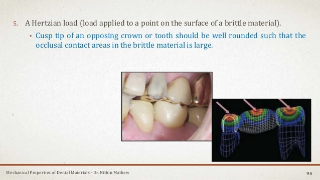 Mechanical Properties of Dental Materials - Dr. Nithin Mathew 5. A Hertzian load (load applied to a point on the surface o...