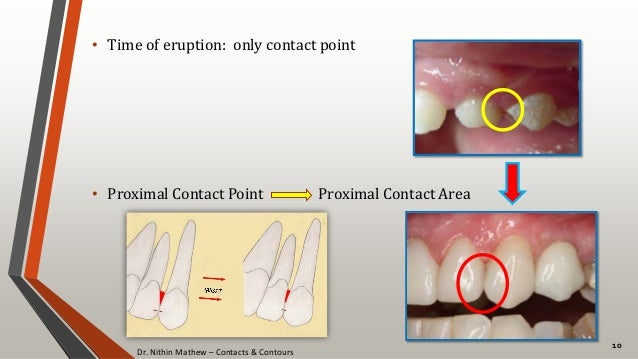 Dr. Nithin Mathew – Contacts & Contours 10 • Time of eruption: only contact point • Proximal Contact Point Proximal Contac...