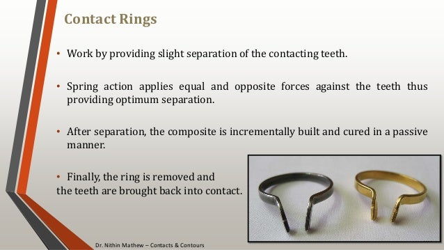 Dr. Nithin Mathew – Contacts & Contours Contact Rings 101 • Work by providing slight separation of the contacting teeth. •...