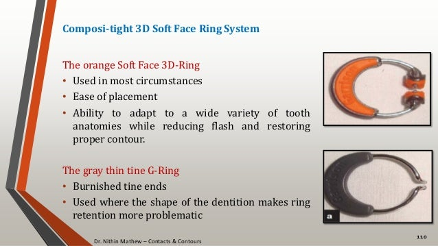 Dr. Nithin Mathew – Contacts & Contours 110 Composi-tight 3D Soft Face Ring System The orange Soft Face 3D-Ring • Used in ...