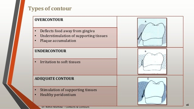 Dr. Nithin Mathew – Contacts & Contours Types of contour 16 OVERCONTOUR • Deflects food away from gingiva • Understimulati...