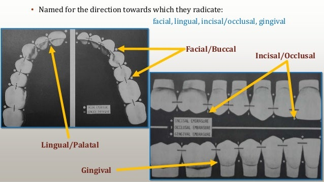 18 • Named for the direction towards which they radicate: facial, lingual, incisal/occlusal, gingival Lingual/Palatal Faci...