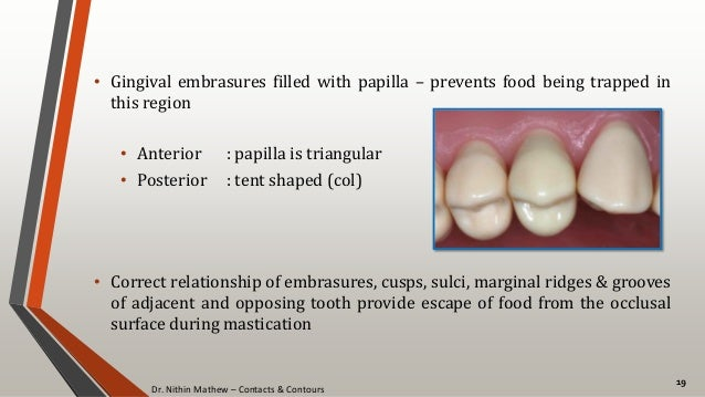 Dr. Nithin Mathew – Contacts & Contours 19 • Gingival embrasures filled with papilla – prevents food being trapped in this...