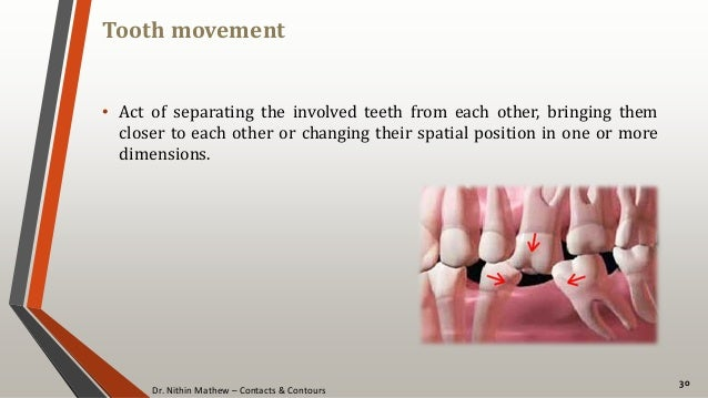 Dr. Nithin Mathew – Contacts & Contours Tooth movement 30 • Act of separating the involved teeth from each other, bringing...