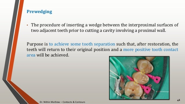 Dr. Nithin Mathew – Contacts & Contours 46 Prewedging • The procedure of inserting a wedge between the interproximal surfa...