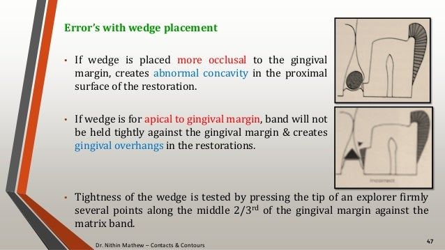 Dr. Nithin Mathew – Contacts & Contours 47 Error's with wedge placement • If wedge is placed more occlusal to the gingival...