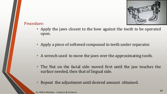 Dr. Nithin Mathew – Contacts & Contours 50 Procedure: • Apply the jaws closest to the bow against the tooth to be operated...