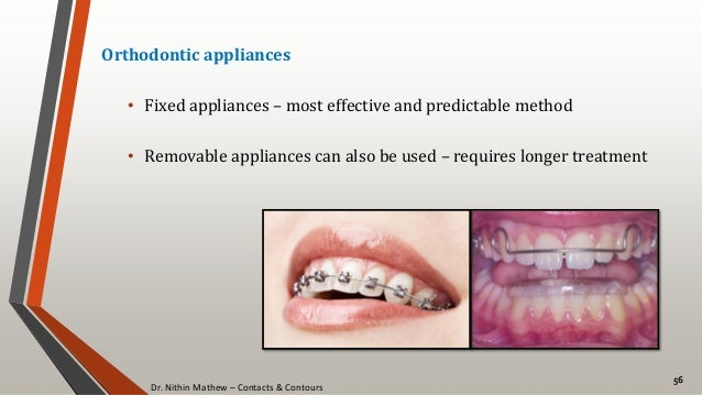 Dr. Nithin Mathew – Contacts & Contours 56 Orthodontic appliances • Fixed appliances – most effective and predictable meth...