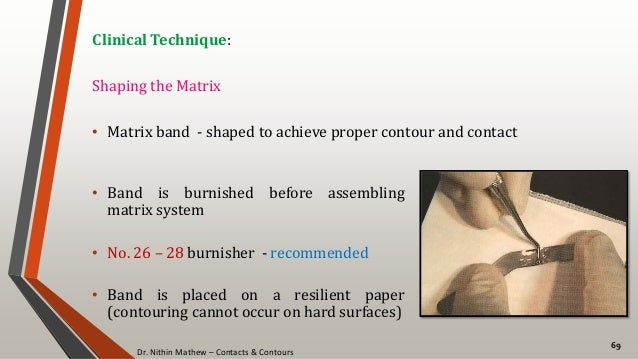 Dr. Nithin Mathew – Contacts & Contours 69 Clinical Technique: Shaping the Matrix • Matrix band - shaped to achieve proper...