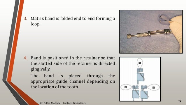Dr. Nithin Mathew – Contacts & Contours 72 3. Matrix band is folded end to end forming a loop. 4. Band is positioned in th...
