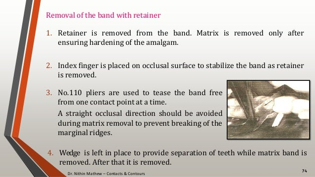 Dr. Nithin Mathew – Contacts & Contours 74 Removal of the band with retainer 1. Retainer is removed from the band. Matrix ...
